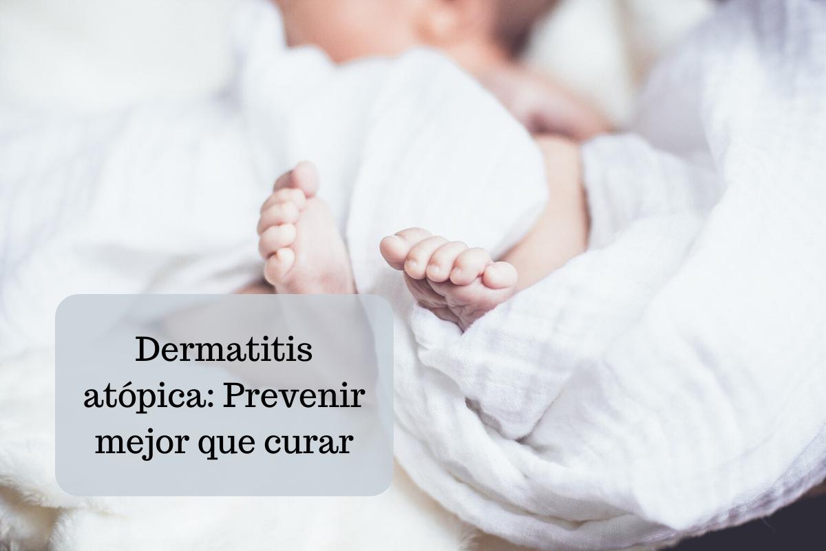 Dermatitis atópica: Prevenir mejor que curar